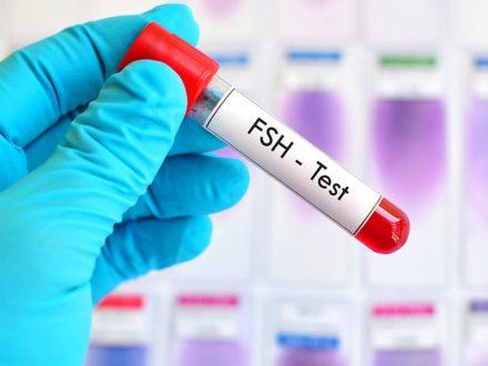 Šta  je FSH hormon, koja je idealna vrijednost?