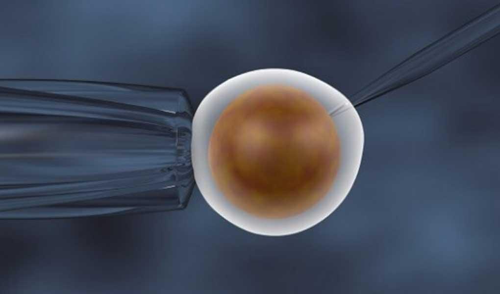 Sperm Hücrelerinin Mikroenjeksiyon Sırasında Yüksek Büyütme ile Seçilmesi (IMSI)