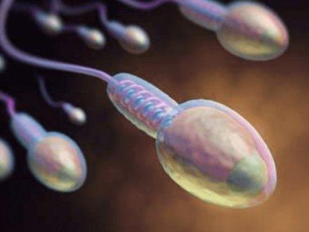 Erkeklerin Korkulu Rüyası: Sperm Şekil (Morfoloji) Bozuklukları