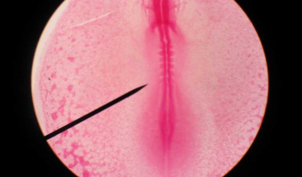 Kadın İnfertilitesinde Yumurtlama Problemleri ve Tedavi Yöntemleri