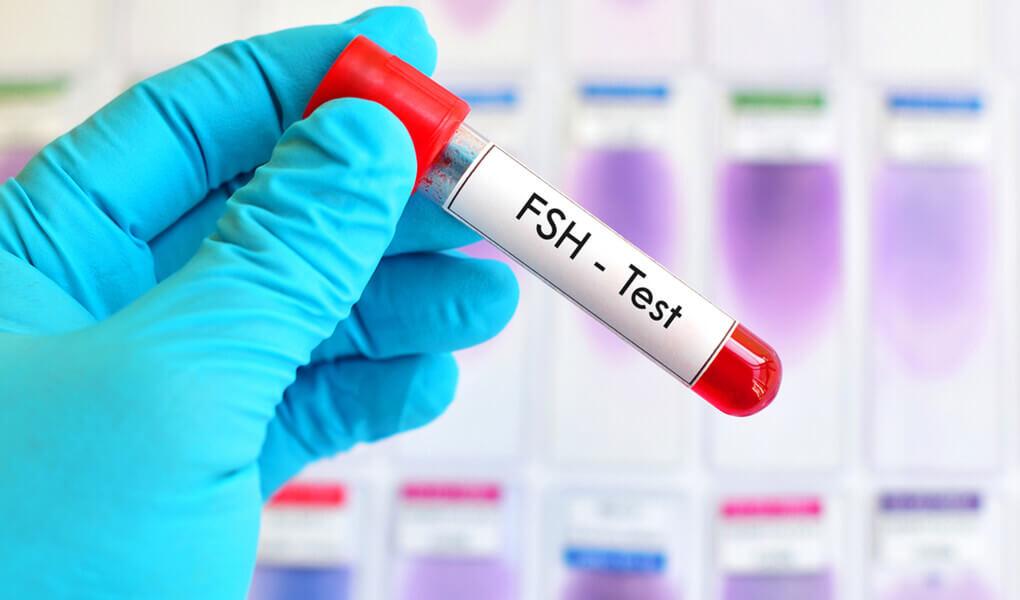 FSH Hormonu Nedir, Kaç Olmalıdır?