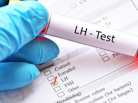 LH (Luteinizing Hormon) ve LH Testi Hakkında Her Şey