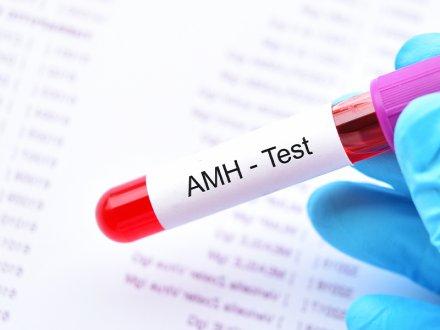 AMH Testi Nedir? AMH Değeri Kaç Olmalıdır?